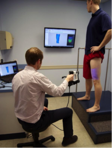 Figure 1: Using Blue LED scanner to obtain digital leg model